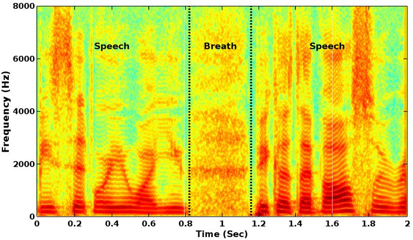 voice spectrogram